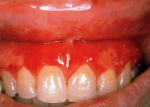 катаральный гингивит