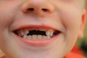 коренные зубы у людей