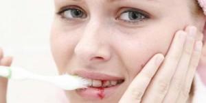 основные симптомы гингивита