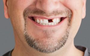 преждевременная потеря зуба