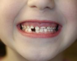 зубы детей