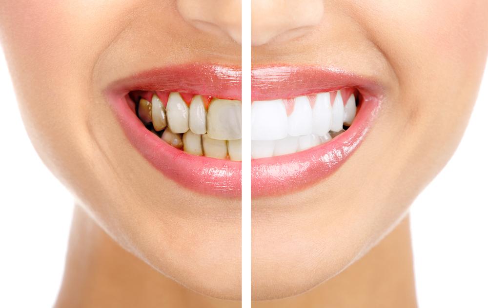 Удаление зуб.налета в домашних условиях