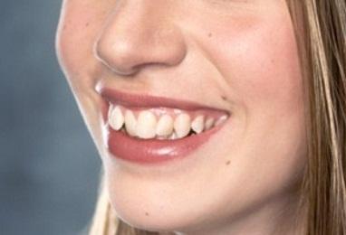 От чего наши зубы стали кривыми