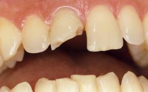 перелома зуба