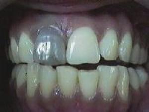 Почему потемнел зуб