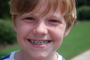 Сколько нужно носить брекеты детям