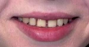 Убрать щель между зубами