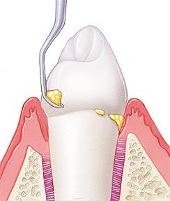 Удаление зубного камня Сумы
