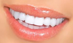 Виды отбеливания зубов в клиниках
