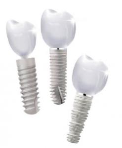 имплантат зубной