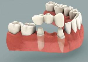 Установка зубного моста (Сумы)
