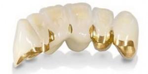 Зубные мосты. Недостатки протеза