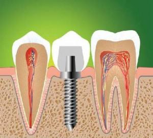 зубная имплантация Сумы