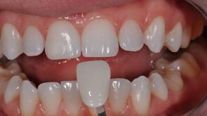 Преимущества и недостатки установки зубных виниров