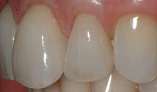 фото трещины на зубах