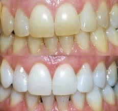 o-zubnom-nalete
