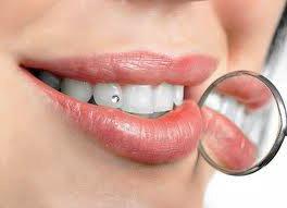 Зубы мудрости. Следует ли делать удаление?