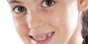 Как можно подобрать ребенку брекеты?
