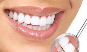Зубные виниры в стоматологии