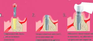 Про этапы имплантации зубов