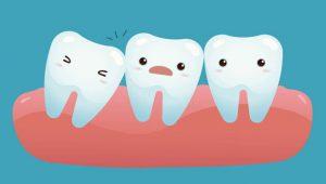Проблема зуба мудрости