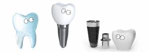 Как можно выбрать зубной имплант?