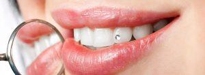 Про косметическую стоматологию