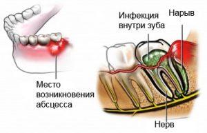 Абсцесс и флюс. Основные понятия