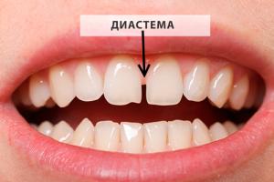 Как можно устранить зубную щель?
