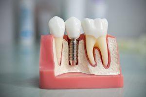 Про экспресс имплантацию зубов