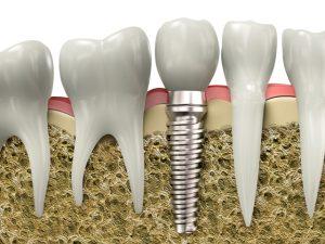 Восстановление утраченных зубов при имплантации