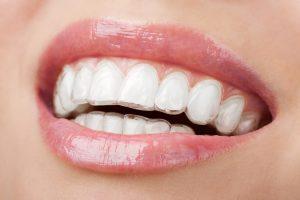 Капы для выравнивания зубов. Эффективность