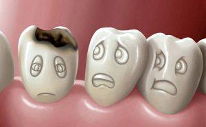 Как распрощаться с кариесом зубов?