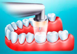 Применение озона в стоматологии