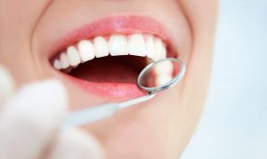 Шесть мифов о стоматологииШесть мифов о стоматологии