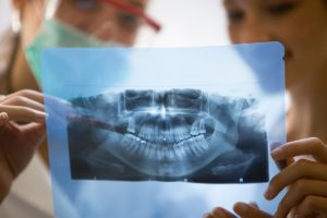 Рентген зубов и беременность. Результаты исследования