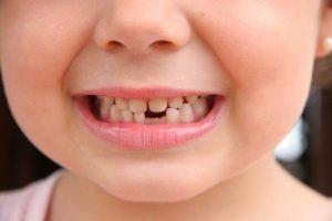 Профилактика потемнения эмали у детей