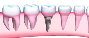 Базальная имплантация зубов в Украине