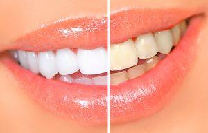 Что влияет на цвет зубной эмали?