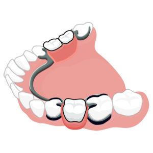 Что такое бюгельное протезирование зубов?