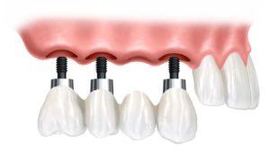 Основные особенности имплантации зубов