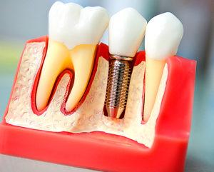 Имплантация зубов - альтернатива протезированию