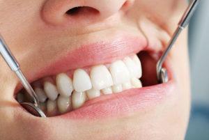 Несъемное протезирования зубов