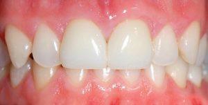 Как ставят коронки на передние зубы?