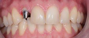 Коронки на передние зубы и их виды