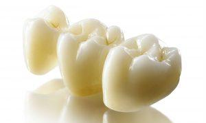 Циркониевые коронки на зубы в Сумах