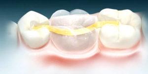 Основные этапы микропротезирования зубов