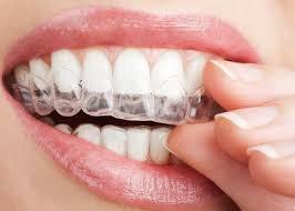 Коррекция зубов при помощи элайнеров