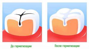 Как происходит герметизация фиссур?