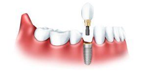 Виды современной имплантации зубов